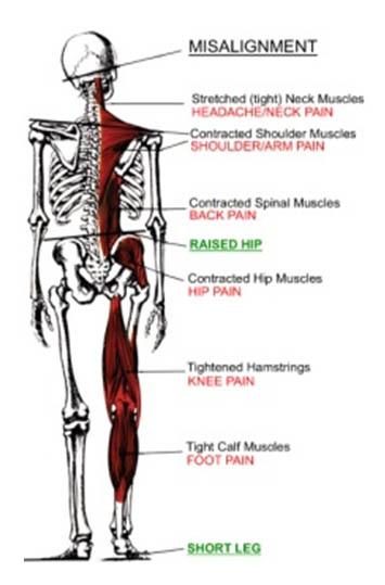 spine-misallignment